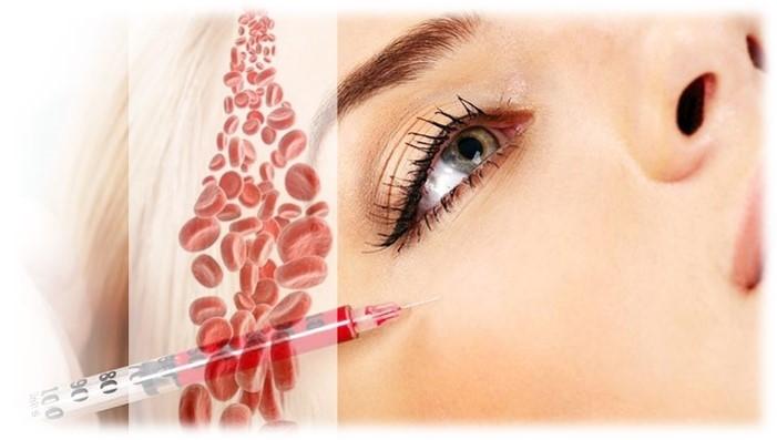 osocze i fibryna bogatoplytkowa